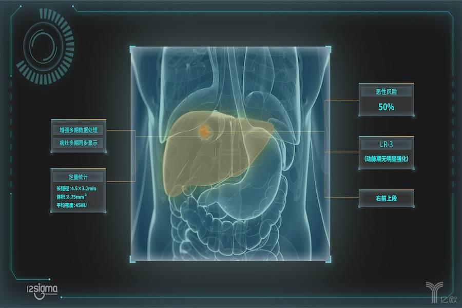 ,医疗,人工智能,智能诊断系统