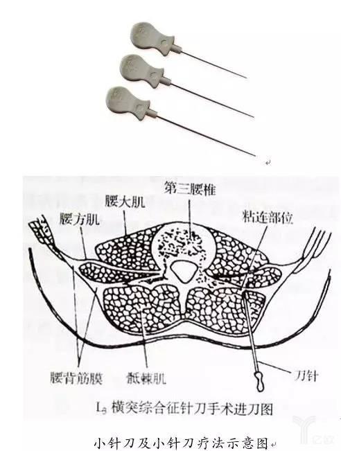 小针刀及小针刀疗法示意图