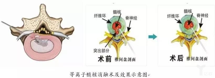 等离子髓核消融术及效果示意图
