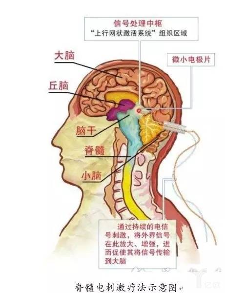 脊髓电刺激疗法示意图