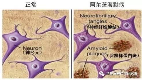 亿欧智库:阿尔兹海默症病理模型