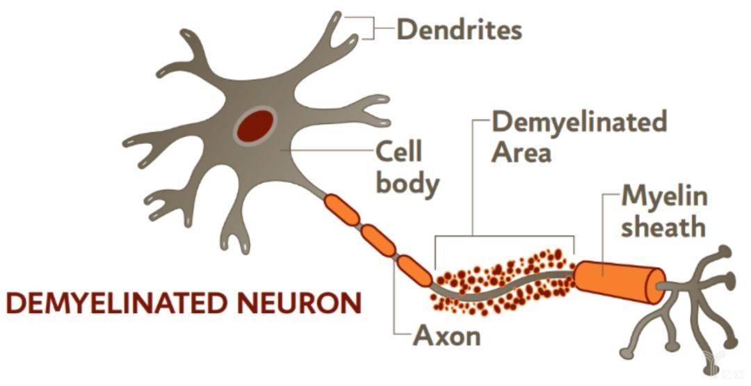图1 神经元脱髓鞘示意图.jpeg