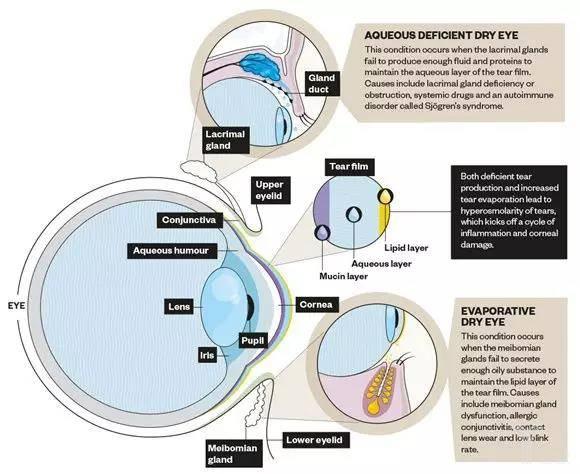 泪液缺乏型和蒸发型干眼病.jpg
